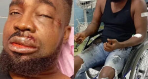 (photos) Igbo rap creator, Mr Raw survives automobile accident in Abuja